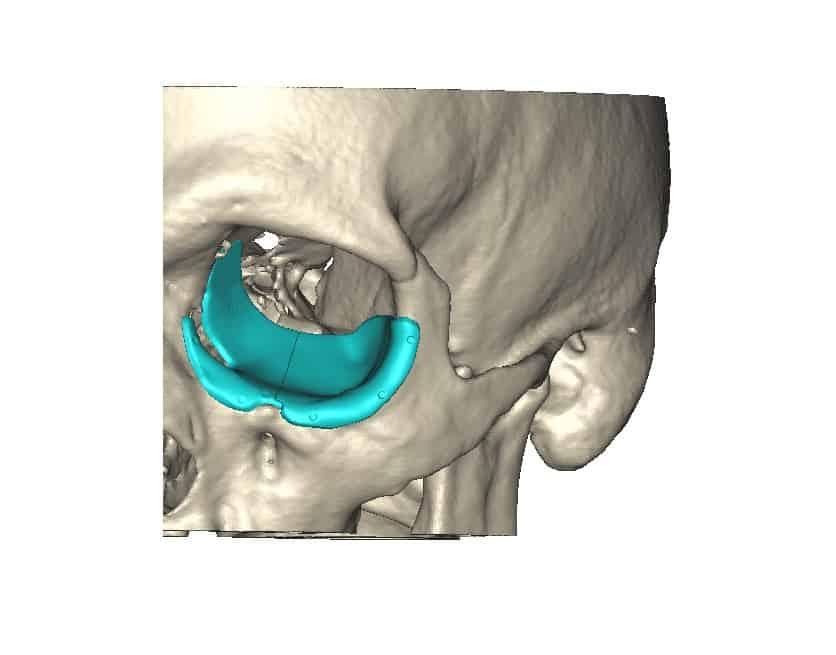 Orbital Floor Patient Specific Implant Attenborough Medical